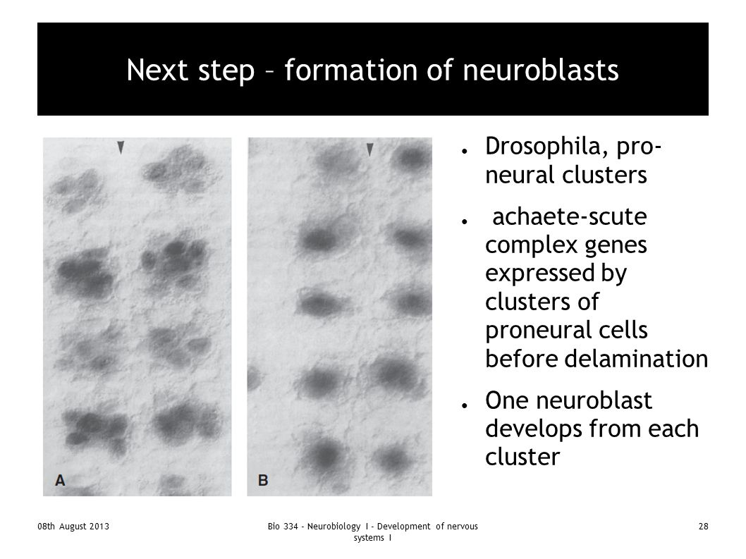Next step – formation of neuroblasts