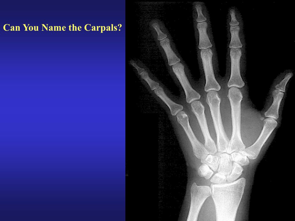 Can You Name the Carpals