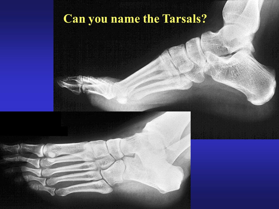 Can you name the Tarsals