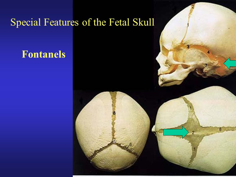 Special Features of the Fetal Skull