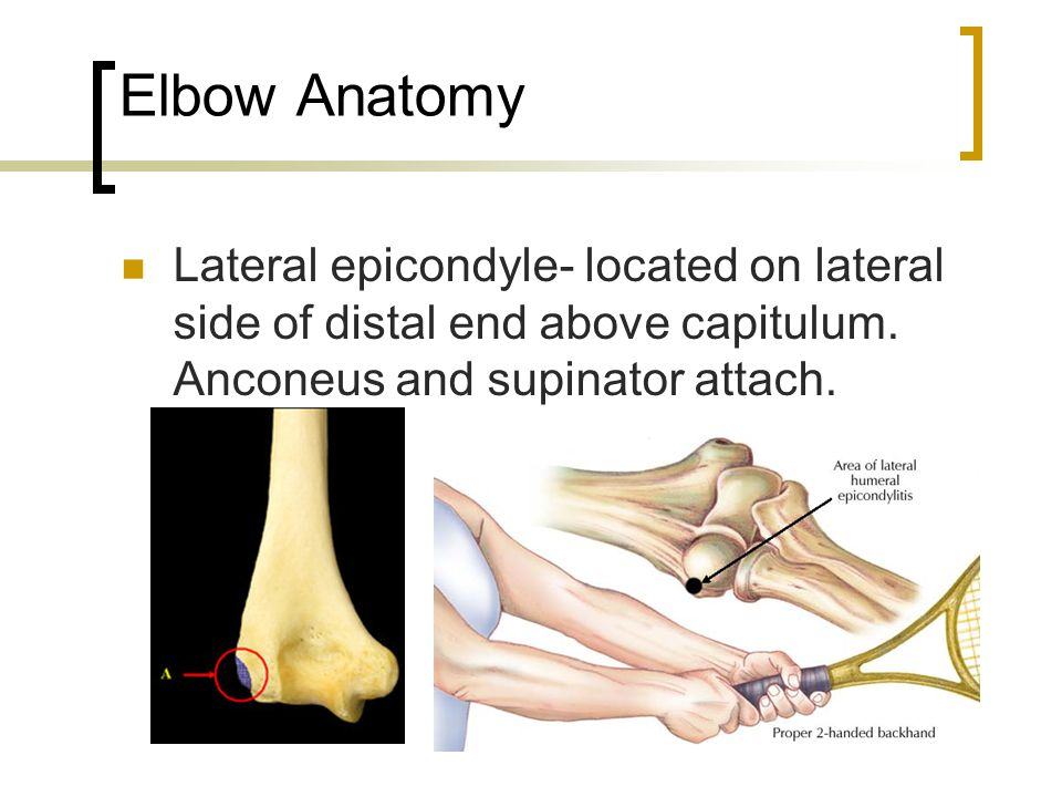 Elbow Anatomy Lateral epicondyle- located on lateral side of distal end above capitulum.