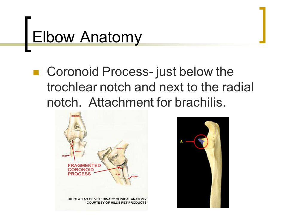Elbow Anatomy Coronoid Process- just below the trochlear notch and next to the radial notch.