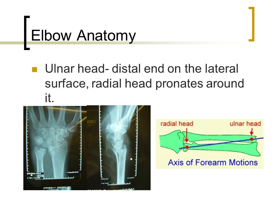 Elbow Anatomy Ulnar head- distal end on the lateral surface, radial head pronates around it.