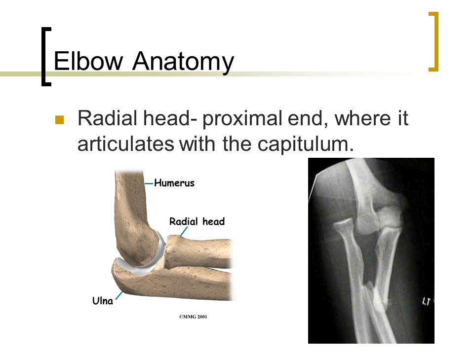 Elbow Anatomy Radial head- proximal end, where it articulates with the capitulum.
