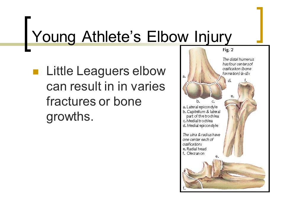 Young Athlete's Elbow Injury