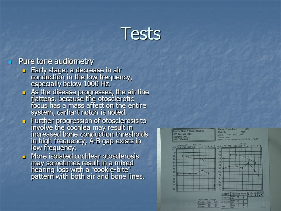 Tests Pure tone audiometry