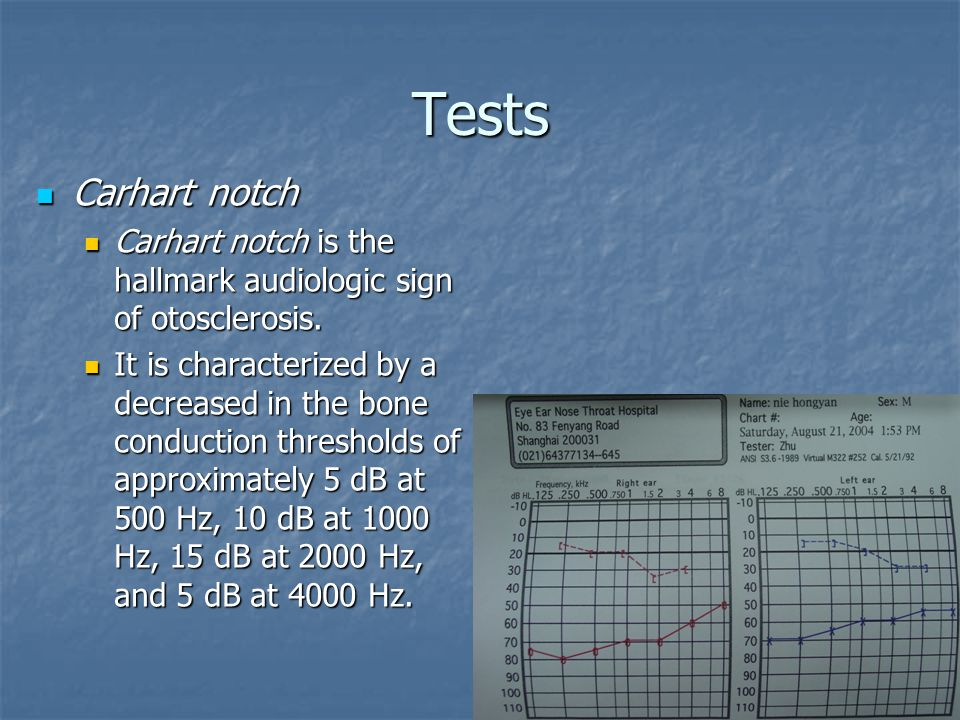Tests Carhart notch. Carhart notch is the hallmark audiologic sign of otosclerosis.