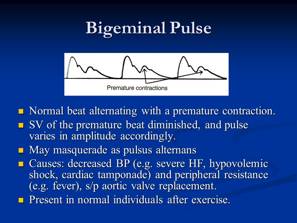 Bigeminal Pulse Normal beat alternating with a premature contraction.