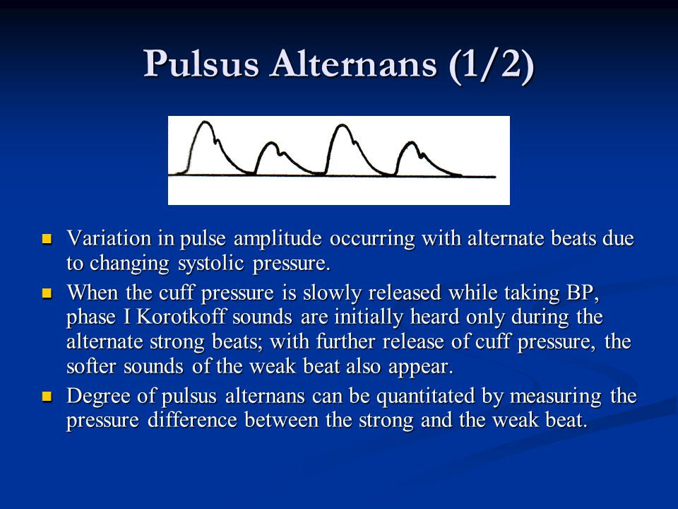 Pulsus Alternans (1/2) Variation in pulse amplitude occurring with alternate beats due to changing systolic pressure.