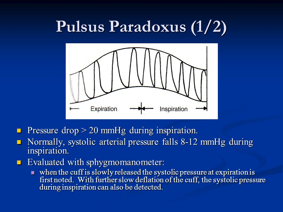 Pulsus Paradoxus (1/2) Pressure drop > 20 mmHg during inspiration.