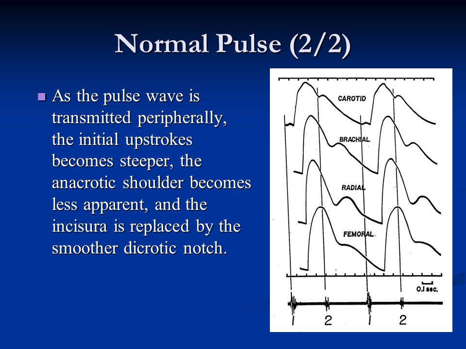 Normal Pulse (2/2)