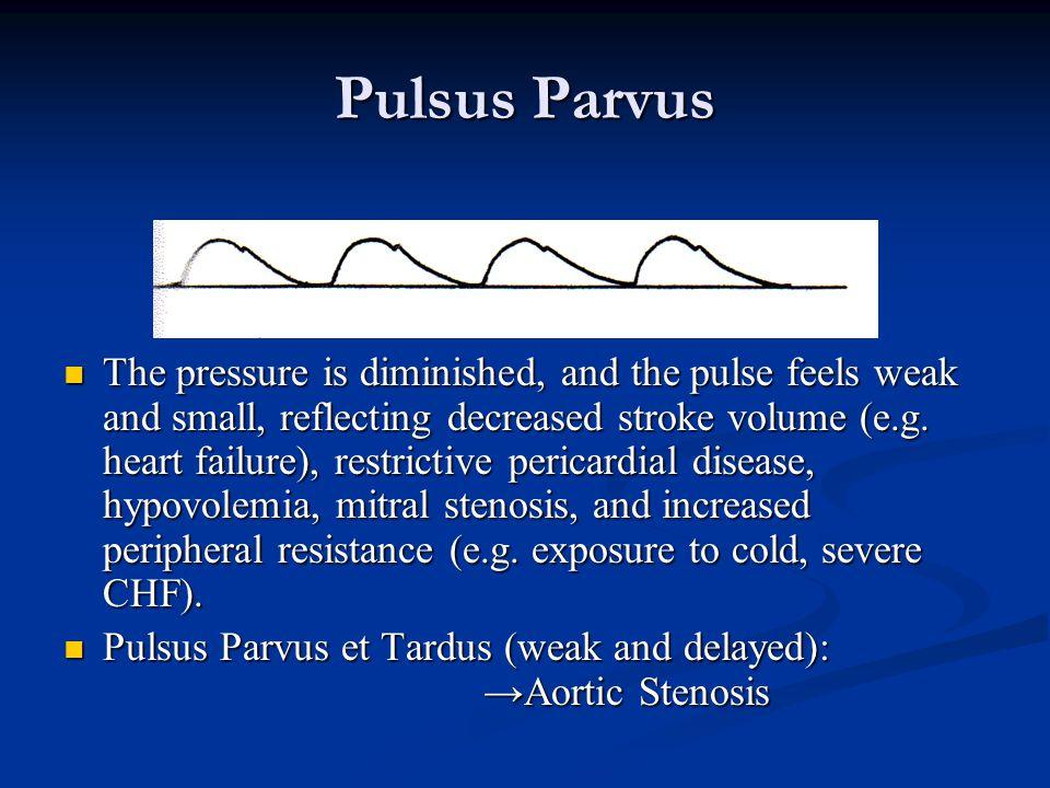 Pulsus Parvus