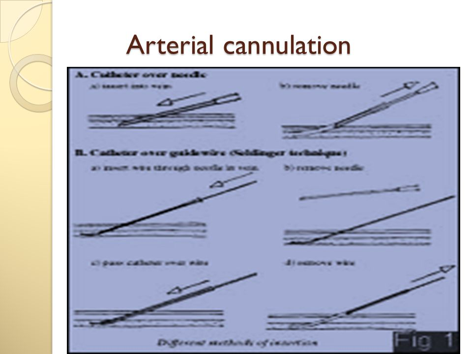 Arterial cannulation