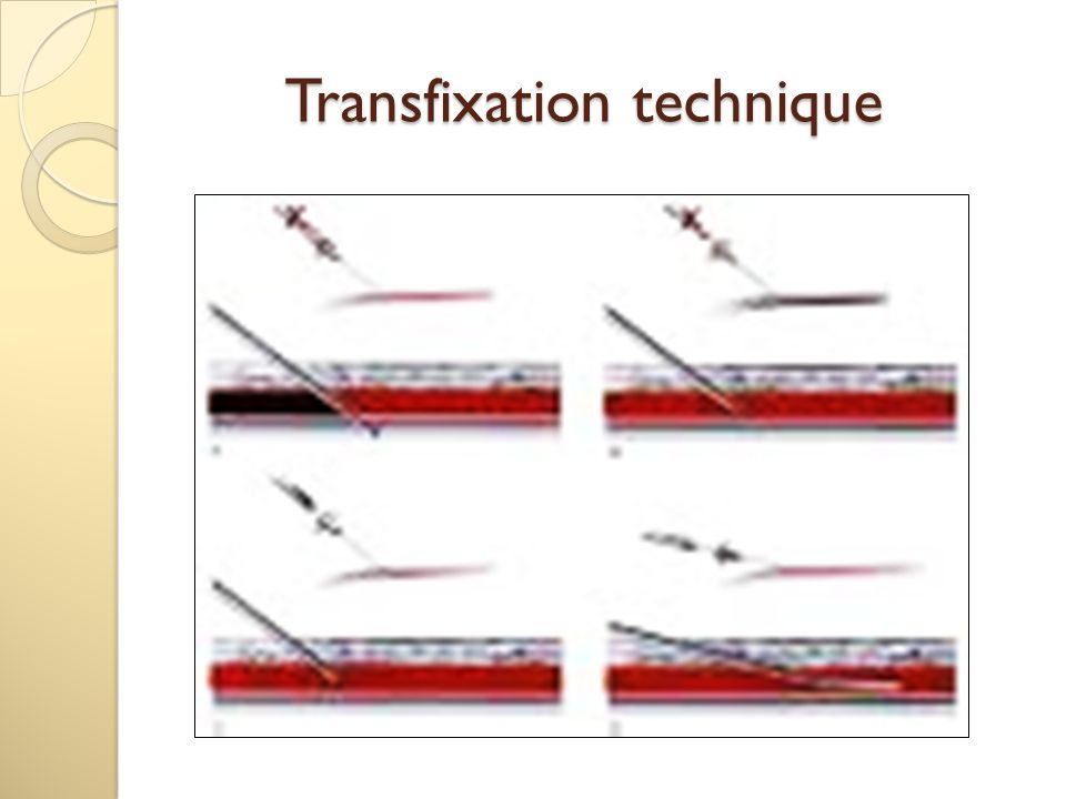 Transfixation technique