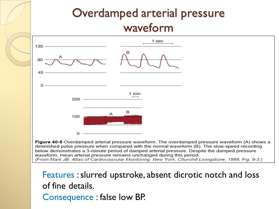Overdamped arterial pressure waveform