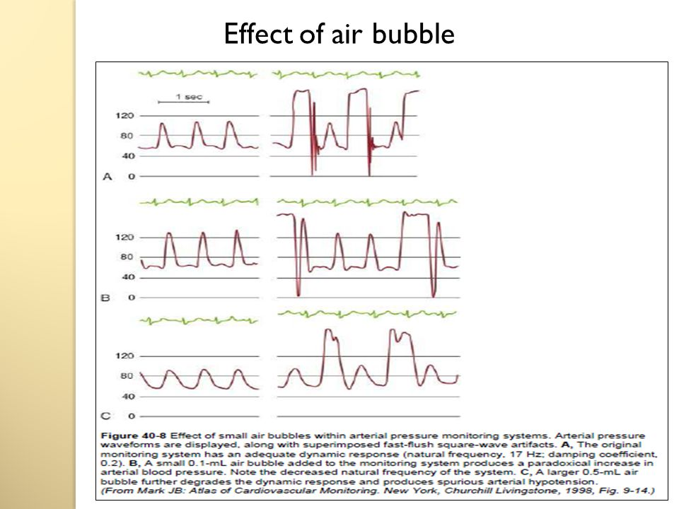 Effect of air bubble