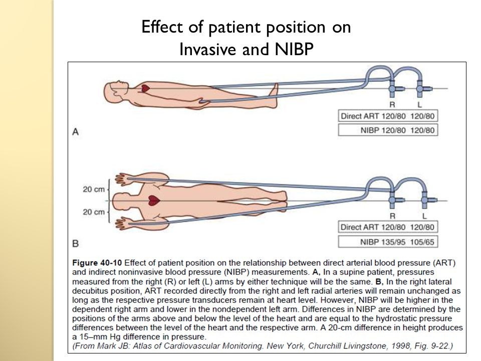 Effect of patient position on Invasive and NIBP