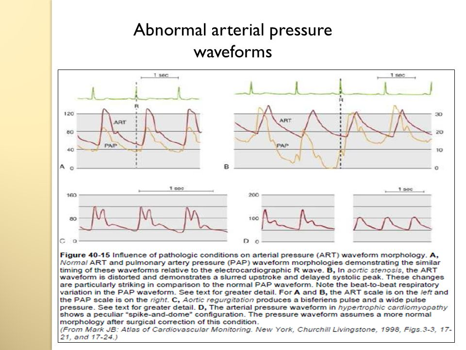 Abnormal arterial pressure waveforms