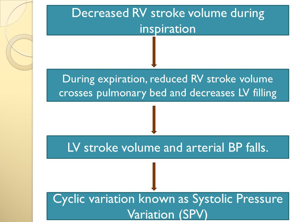 Decreased RV stroke volume during inspiration