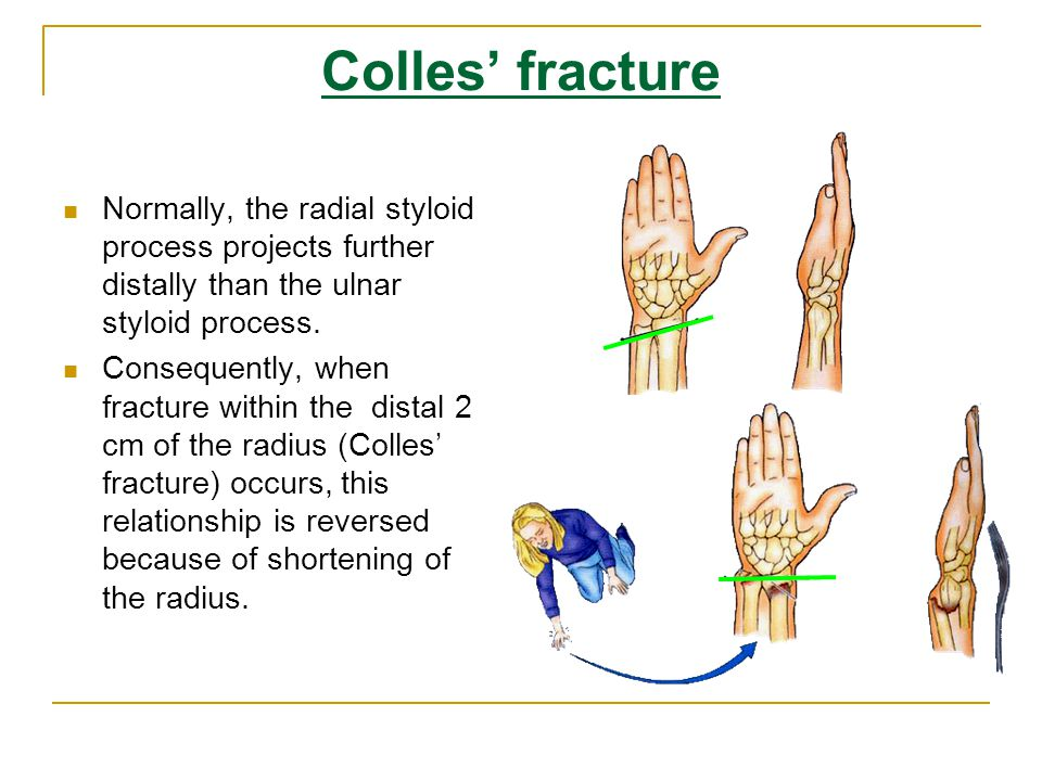Colles' fracture Normally, the radial styloid process projects further distally than the ulnar styloid process.