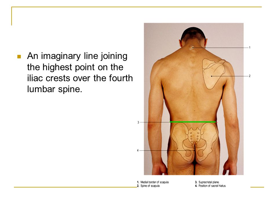 An imaginary line joining the highest point on the iliac crests over the fourth lumbar spine.