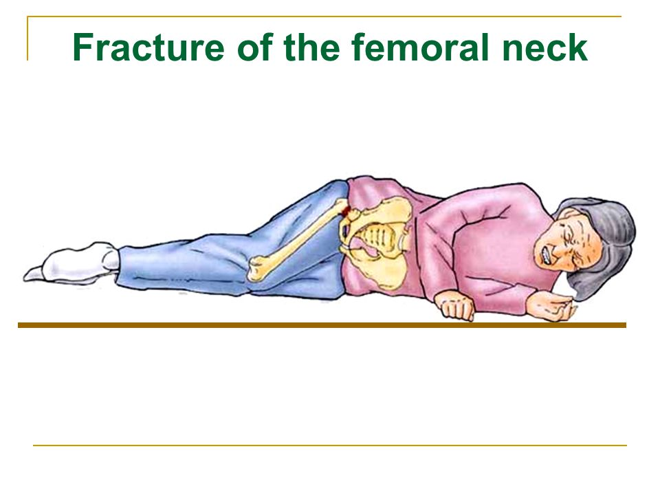 Fracture of the femoral neck