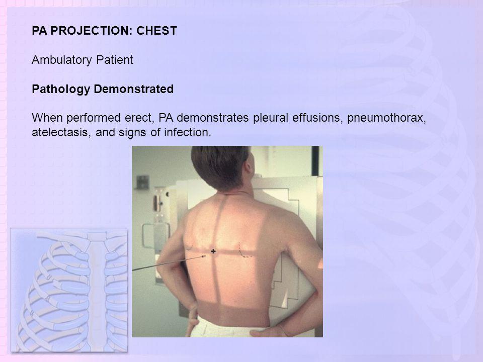 PA PROJECTION: CHEST Ambulatory Patient. Pathology Demonstrated.