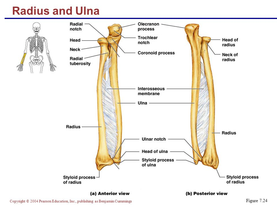 Radius and Ulna Figure 7.24