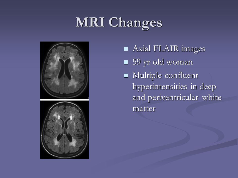 MRI Changes Axial FLAIR images 59 yr old woman