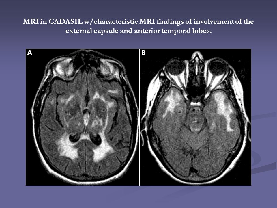 MRI in CADASIL w/characteristic MRI findings of involvement of the external capsule and anterior temporal lobes.