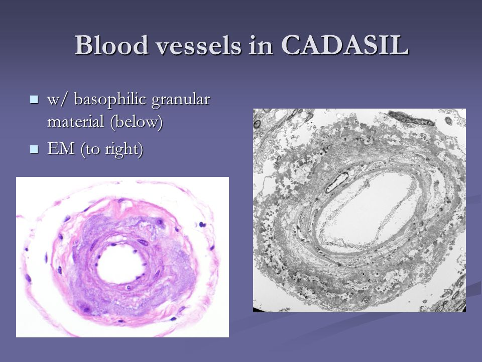 Blood vessels in CADASIL