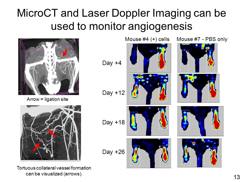 MicroCT and Laser Doppler Imaging can be used to monitor angiogenesis