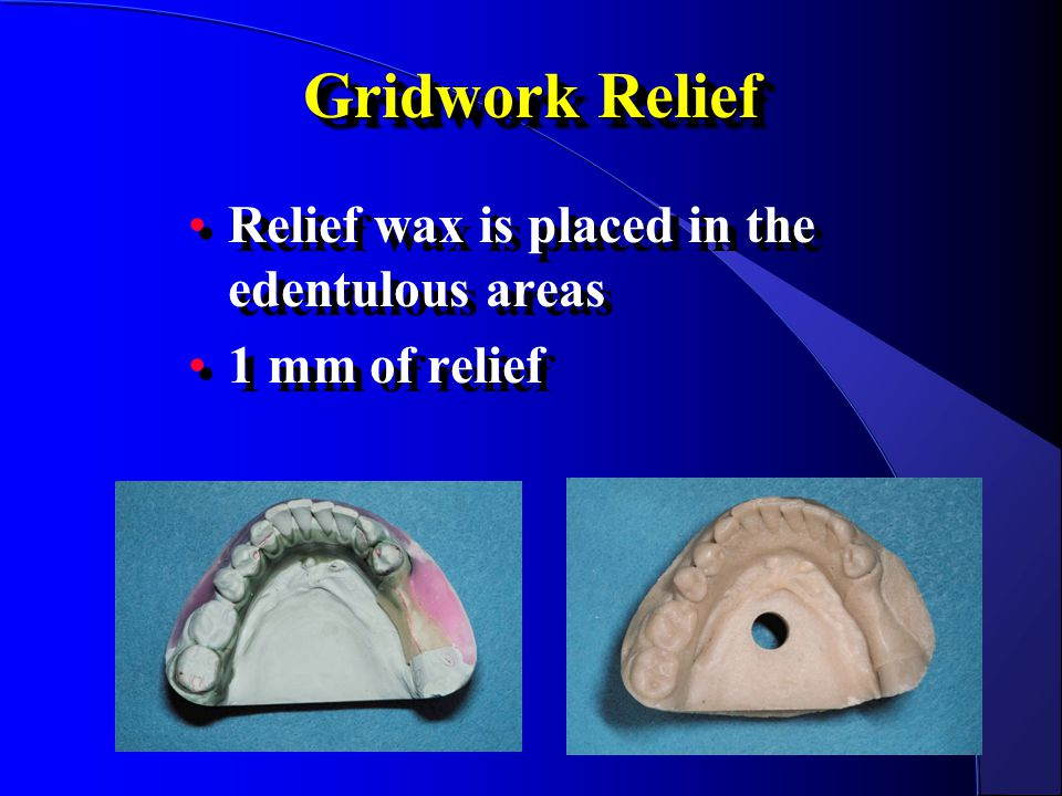 Gridwork Relief Relief wax is placed in the edentulous areas