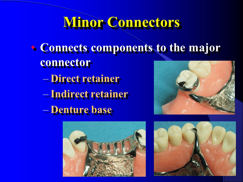 Minor Connectors Connects components to the major connector