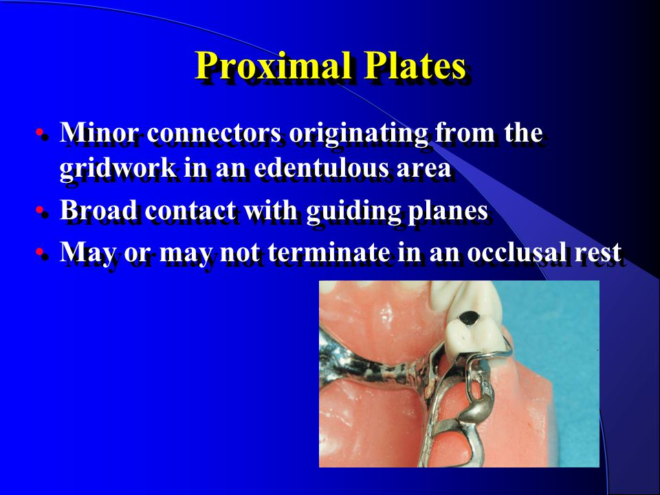 Proximal Plates Minor connectors originating from the gridwork in an edentulous area. Broad contact with guiding planes.