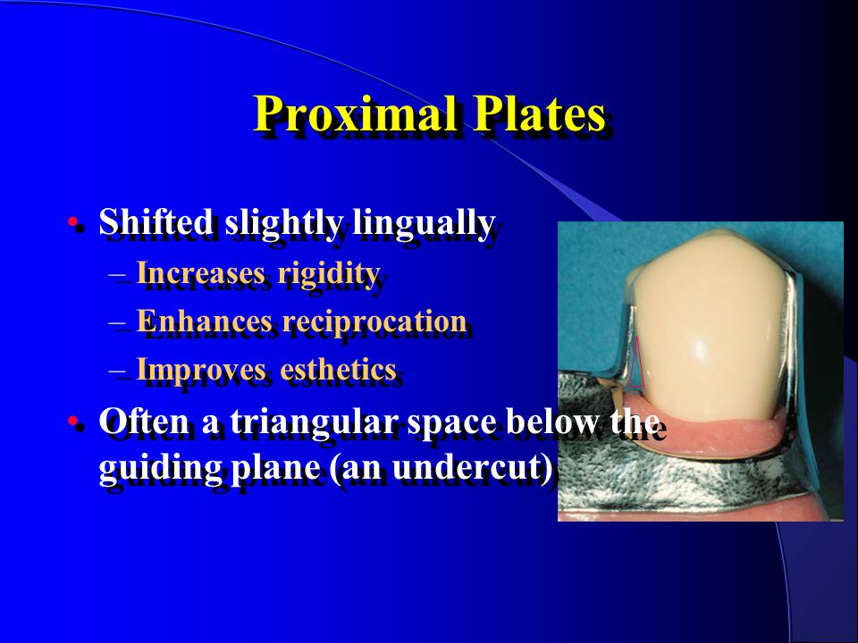 Proximal Plates Shifted slightly lingually
