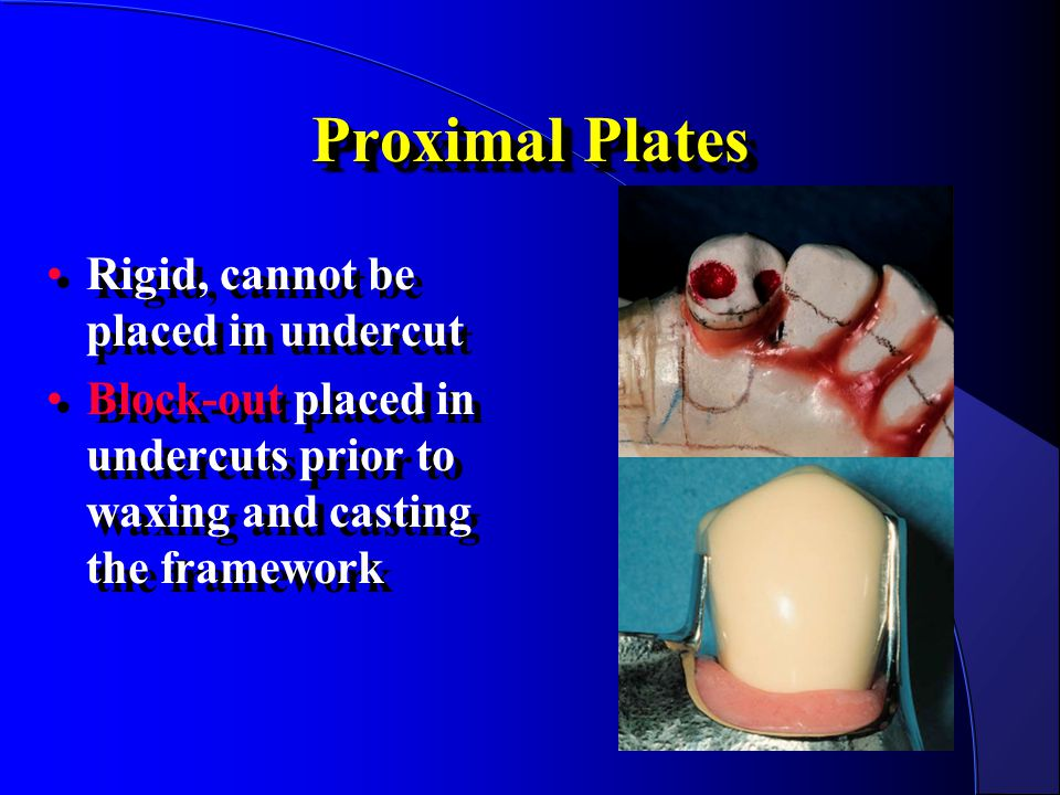 Proximal Plates Rigid, cannot be placed in undercut