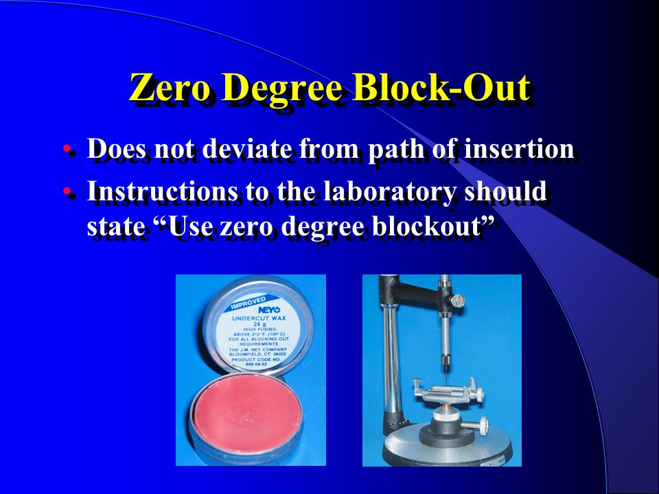 Zero Degree Block-Out Does not deviate from path of insertion