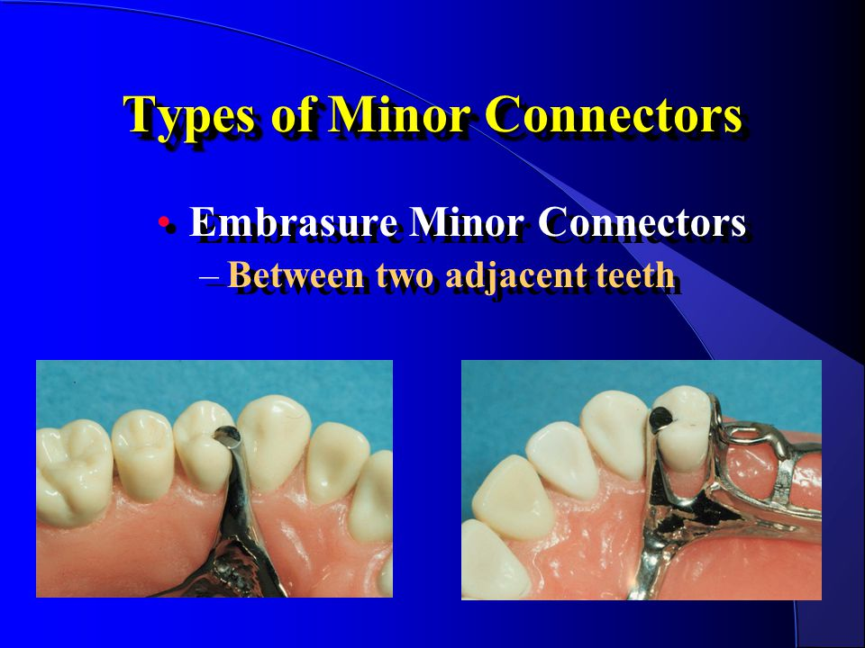 Types of Minor Connectors