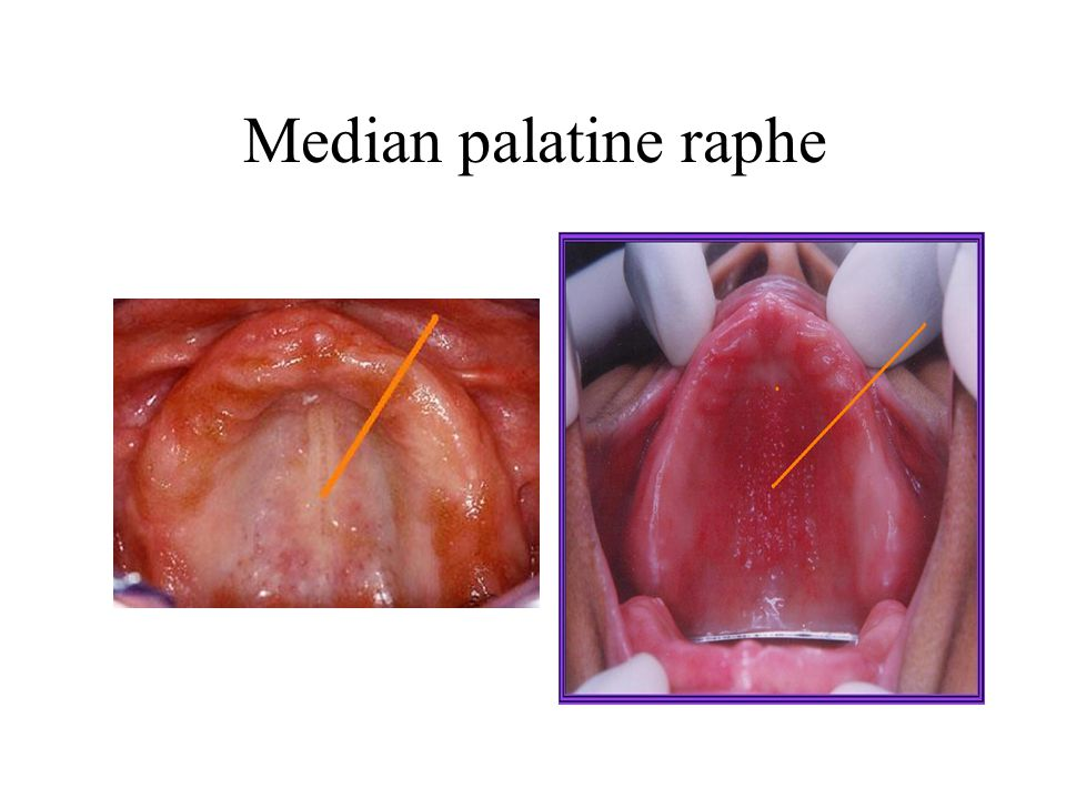 Median palatine raphe