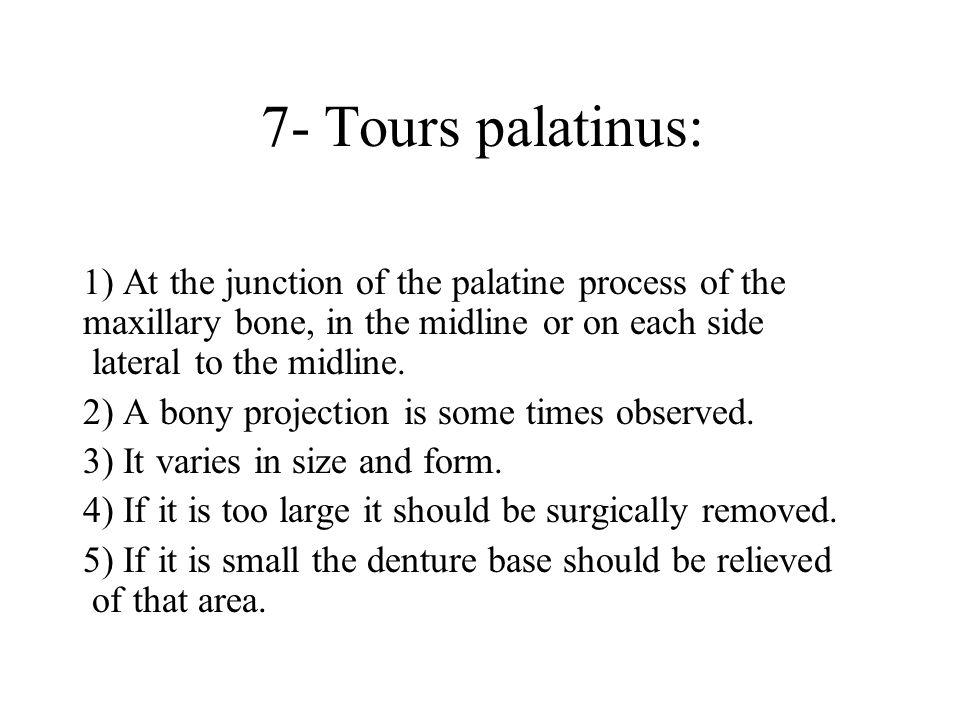 7- Tours palatinus: