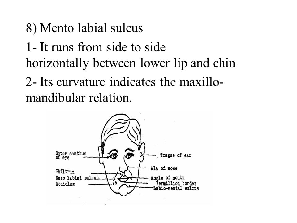 8) Mento labial sulcus 1- It runs from side to side horizontally between lower lip and chin.