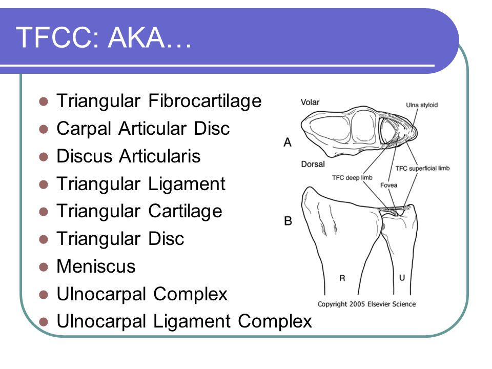TFCC: AKA… Triangular Fibrocartilage Carpal Articular Disc