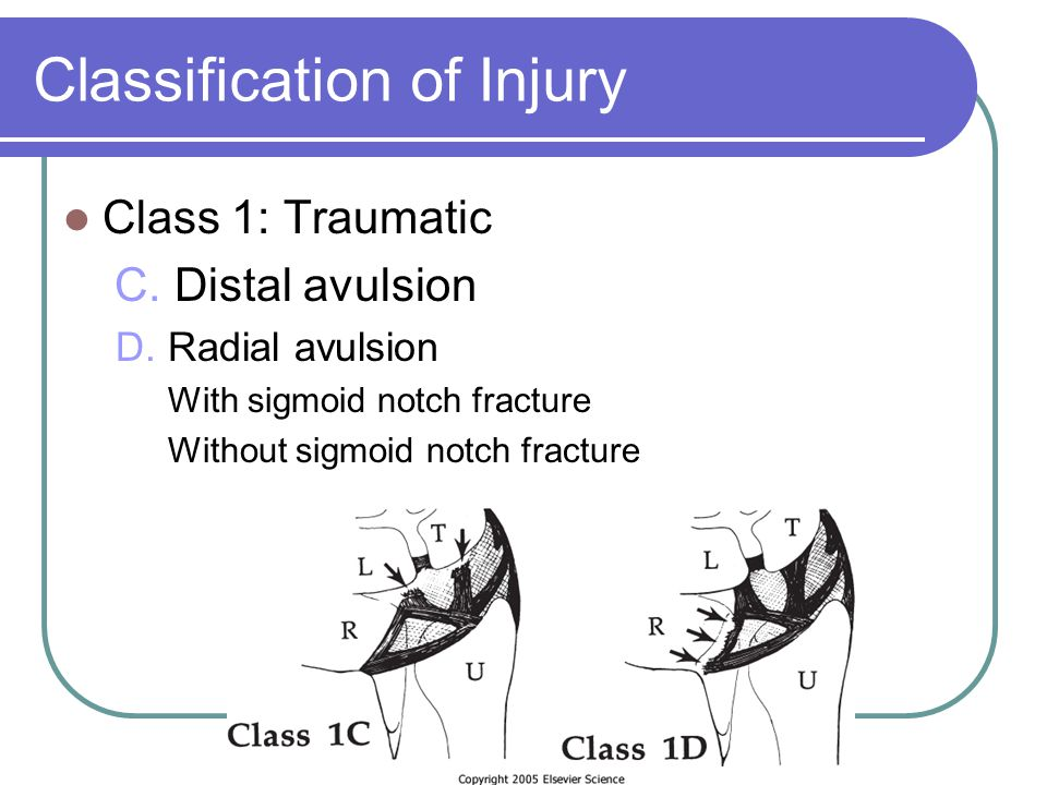Classification of Injury