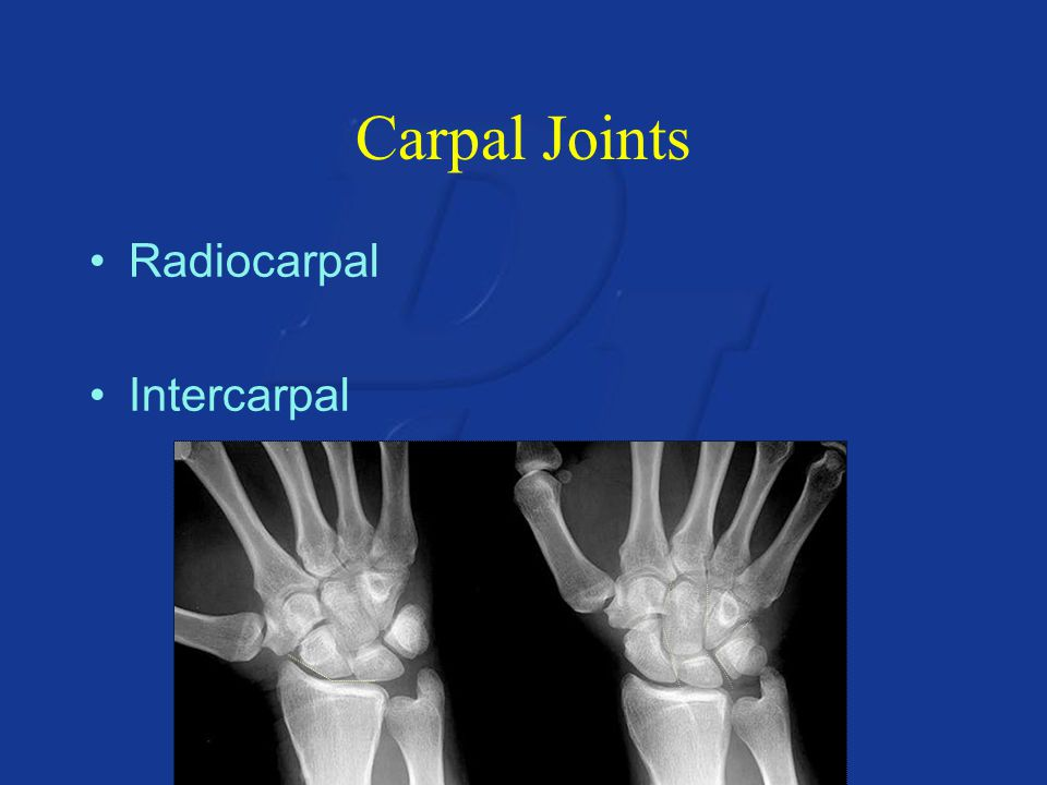 Carpal Joints Radiocarpal Intercarpal