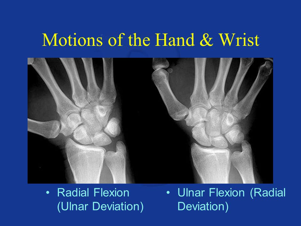 Motions of the Hand & Wrist