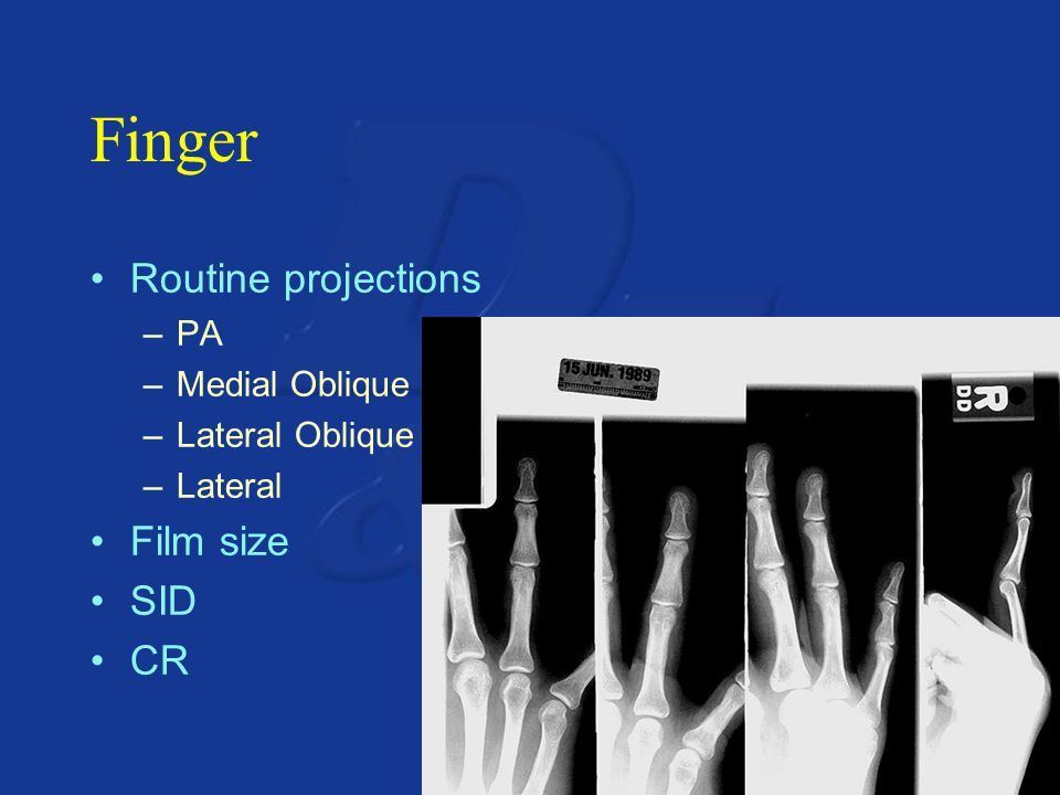 Finger Routine projections Film size SID CR PA Medial Oblique