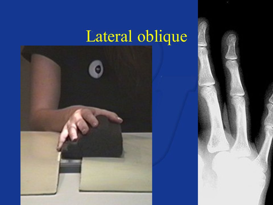 Lateral oblique