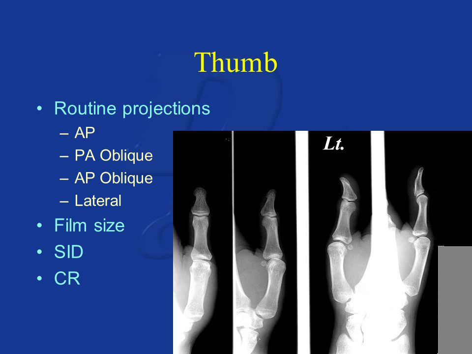 Thumb Routine projections Film size SID CR AP PA Oblique AP Oblique