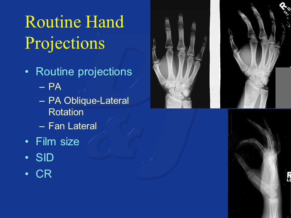 Routine Hand Projections